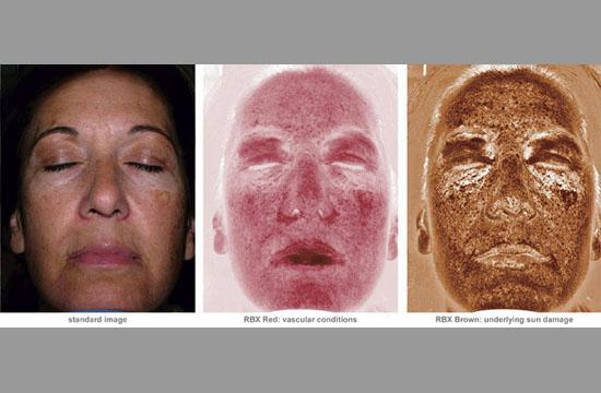 Images depicting the extent of sun damage caused by sun exposure.