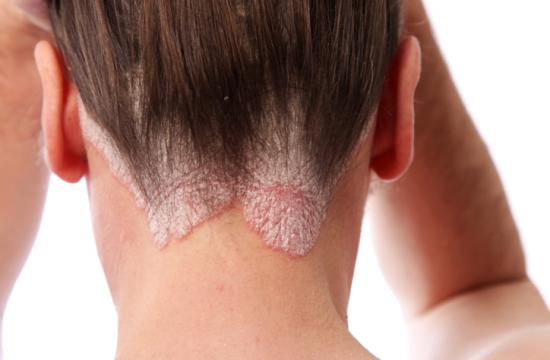 """Some people may suffer eczema """"flare-ups"""" of the itchy rash in response to certain substances or conditions."""
