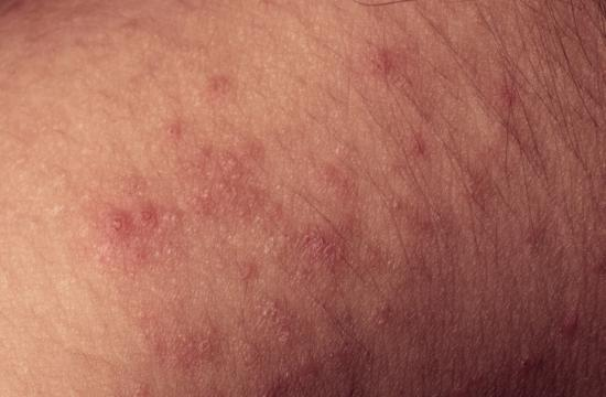 Relieve the itch by using a moisturizer rather than potentially dangerous drugs. Moisturizers should be free of alcohol