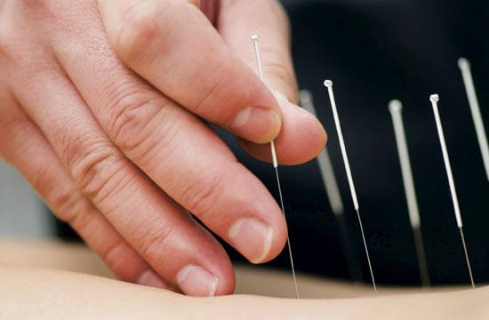 Acupuncture can help alleviate lower back pain