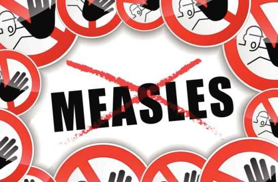 Measles generally begins with fever